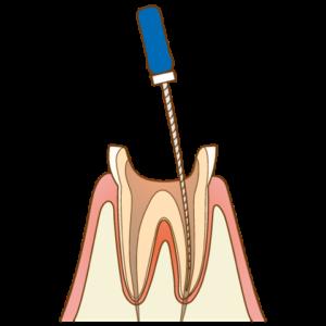 一般的な根管治療と、当院の『MI 根管治療』の違い