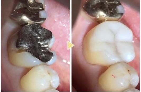 セラミックスへの取り換えは、ムシ歯治療のタイミングで
