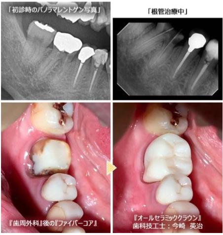 治療途中でフタをされ内部で虫歯が進行していることも。