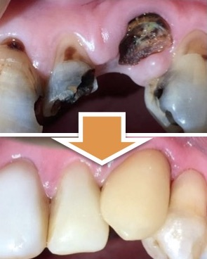 歯を抜くと、骨が溶けて周りの歯も次々抜けていく...って本当!?