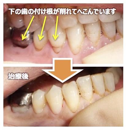 歯の付け根が削れて凹んでいませんか? ~知覚過敏の治し方~
