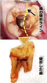 虫歯の痛みが急になくなることがあるのはなぜ…?