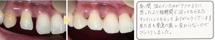 大人になってからのすきっ歯、およそ9割は歯周病が原因です