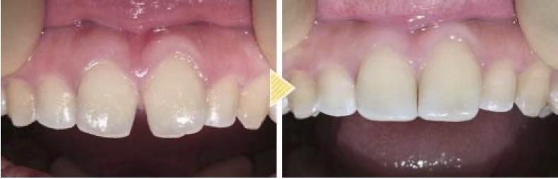 他院で断られたすきっ歯も、ダイレクトボンディングできれいに治せます