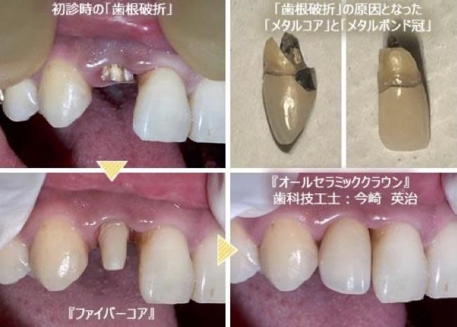 『自費治療』でも、素材によって歯根破折する事があります