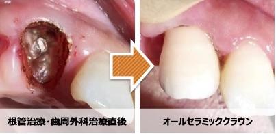 他院で「抜歯です」と言われた歯が梅新デンタルでは残せる理由