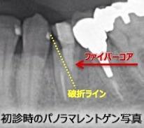 自費治療なら安心...?→ファイバーコアで歯根破折も!