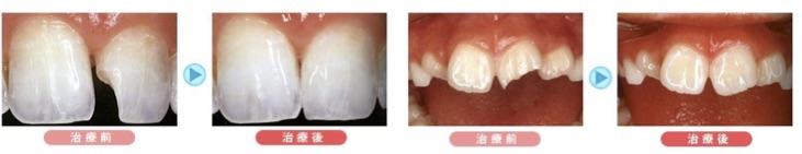 欠けてしまった歯は、「ダイレクトボンディング」できれいに治ります。