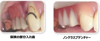 金属バネのない自然な部分入れ歯 『ノンクラスプデンチャー』
