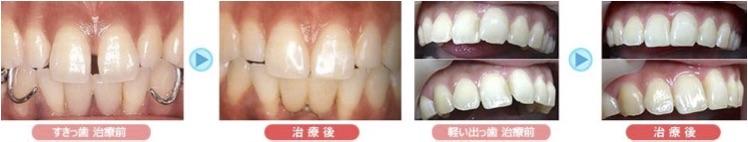歯を抜かない、1日できれいな歯並びになるプチ矯正
