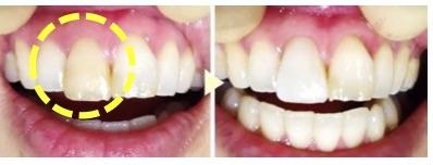 神経を取った歯や、テトラサイクリンによる歯の変色