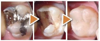 歯医者さんでの虫歯の取り残し にご注意!