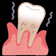 ご存知ですか?歯周病と全身疾患の関係