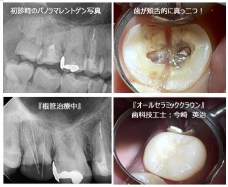 日本(主に保険治療)の根管治療 失敗率は50~70%!
