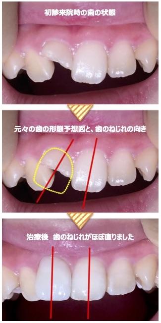 ダイレクトボンディングで『 歯のねじれ』を修正することも 可能です