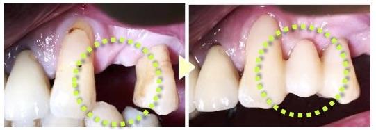 インプラントに代わる、 他の歯への負担が少ない 『 ダイレクトブリッジ 』