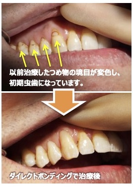 保険で治療したところがまた虫歯に!?虫歯の再発と変色を防ぐ『ダイレクトボンディング』