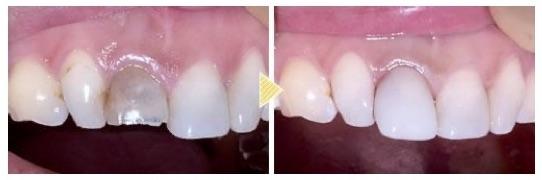 「歯の変色」もダイレクトボンディングで審美回復