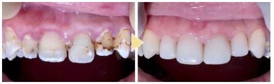 他院で抜歯と言われたその歯は、本当に残せないのでしょうか?