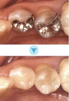 できるだけ歯を削らない虫歯治療をしています。